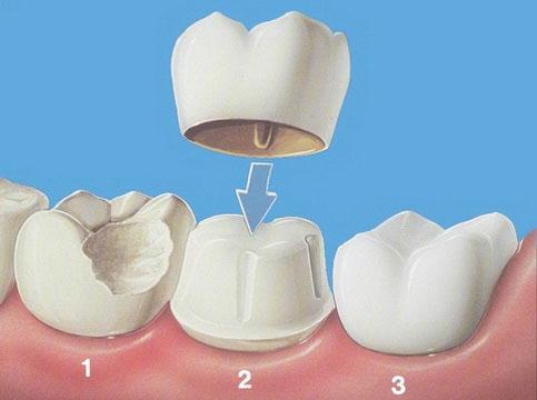 Mise en place des implants