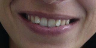 des facettes dentaires en Tunisie