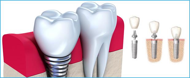 Implants dentaires en Tunisie