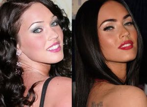 megan fox chirurgie esthetique avant apres