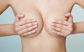 Correction de ptôse mammaire