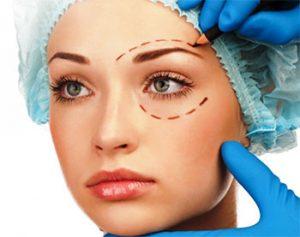 chirurgie esthétique des paupières blépharoplastie