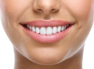 facettes dentaires avant après