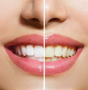 pose de facettes dentaires