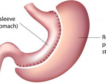 sleeve gastrique