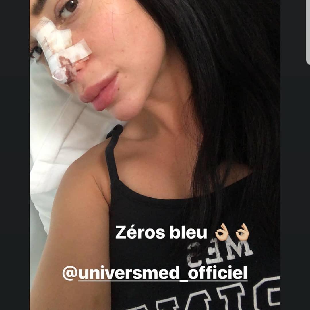 Jelena chirurgie esthétique