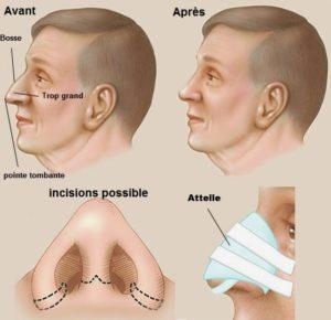 rhinoplastie homme