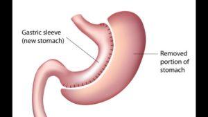 sleeve gastroplastie