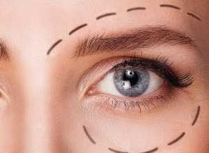 blepharoplastie en tunisie