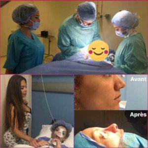 bon chirurgien esthetique