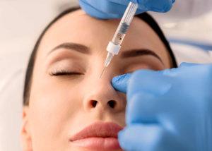 Rhinoplastie médicale, le chirurgie esthétique du nez sans chirurgie