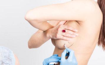 chirurgie des seins en Tunisie